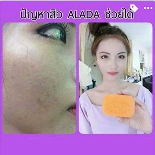 Picture of Alada Whitening Soap