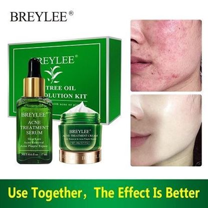 Picture of Breylee Acne Treatment Acne Removal Acne Pimple Repair Cream